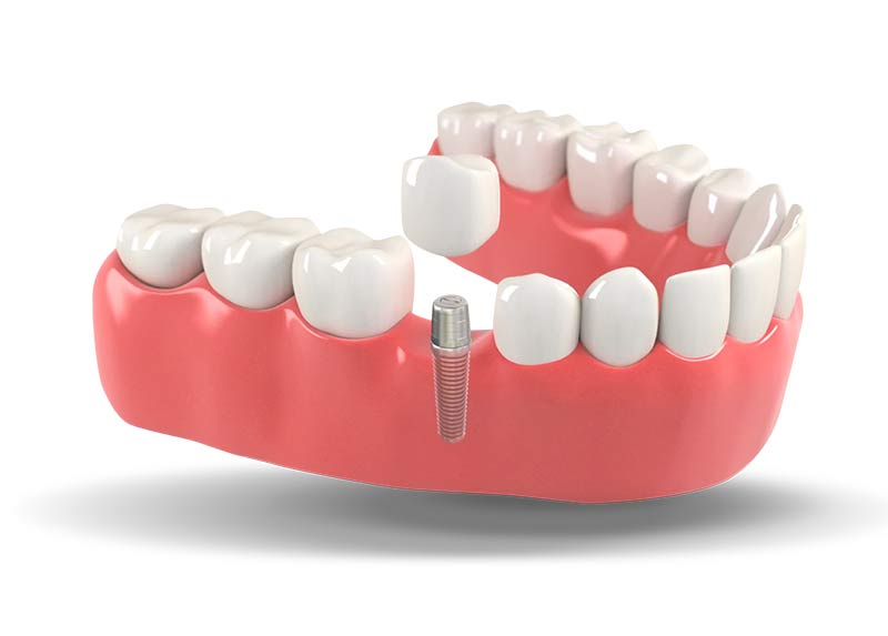 Dental Implant Model Select Dental